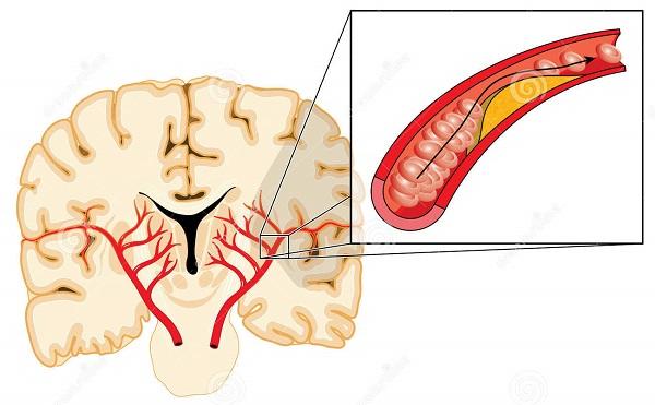 Как лечить атеросклероз головного мозга в домашних условиях