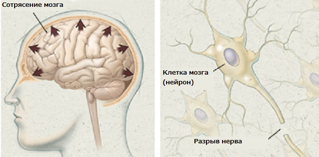 Nursing management of adults with severe traumatic brain injury aann