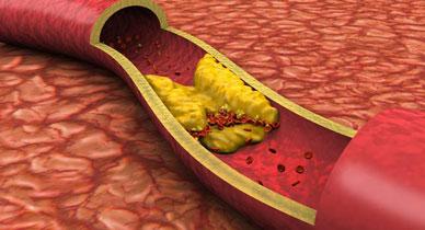 Анализ крови значение холестерин