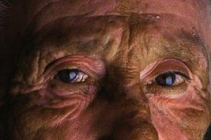 Типичные глаза больного синдромом Вернике