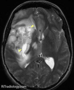 Рентген злокачественной опухоли