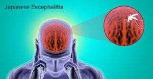 Болит голова? А не энцефалит ли это?