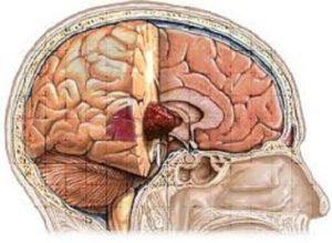 Как болит мозг