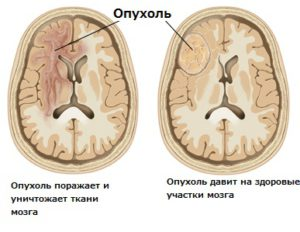 Два вида опухолей