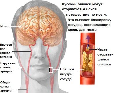 Профилактика атеросклероза сосудов головного мозга и ее особенности.