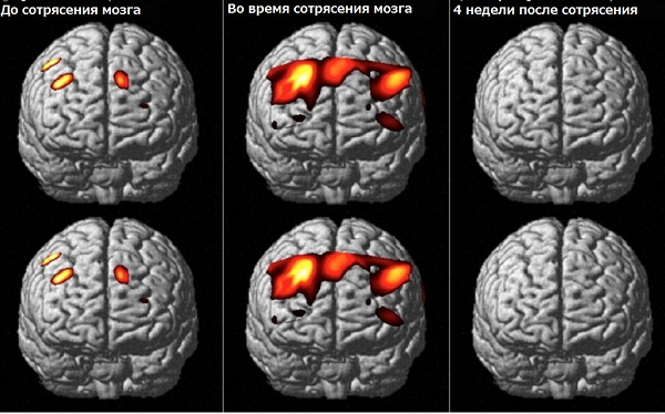 brain imaging techniques Cognitive psychology is the scientific investigation of human cognition with the ease of access and wide use of brain imaging techniques.