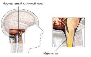 Влияние на спинной мозг