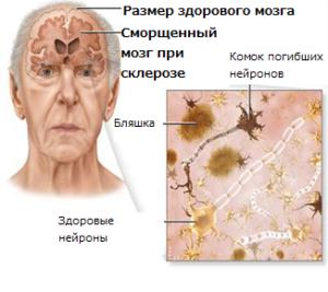 О старческом склерозе