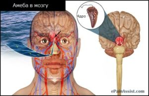 Проникновение амебы в мозг