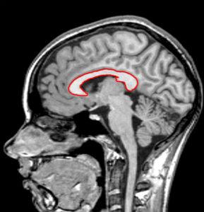 Поражение мозолистого тела