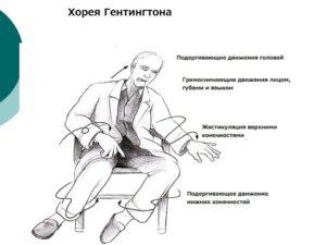 Основные признаки болезни
