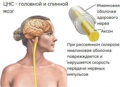 Лечение рассеянного склероза, диагностика и симптомы