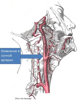 Нарушения в сонной артерии