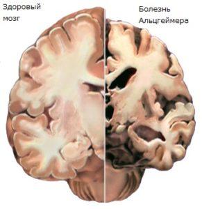 Мозг при болезни