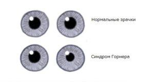 Глаза при синдроме Гонрера