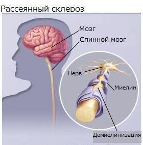 Как проявляется склероз голове