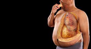 Ожирение и атеросклероз взаимосвязанны