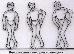 Вариант походки