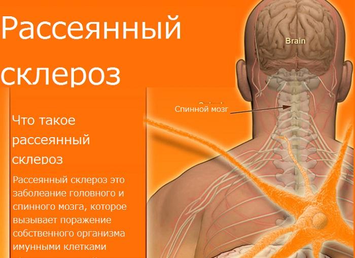 Рассеянный склероз море