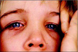 Проявления на глазах