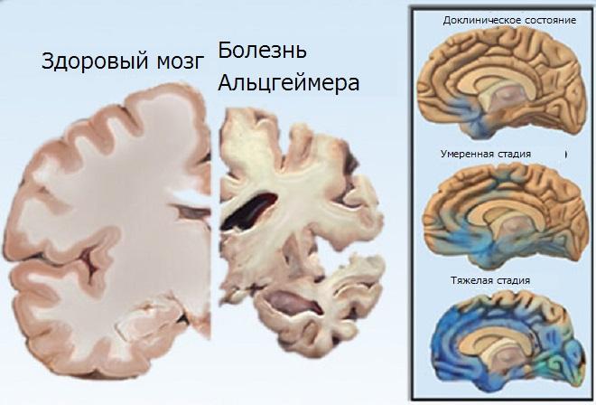 Как выглядит мозг