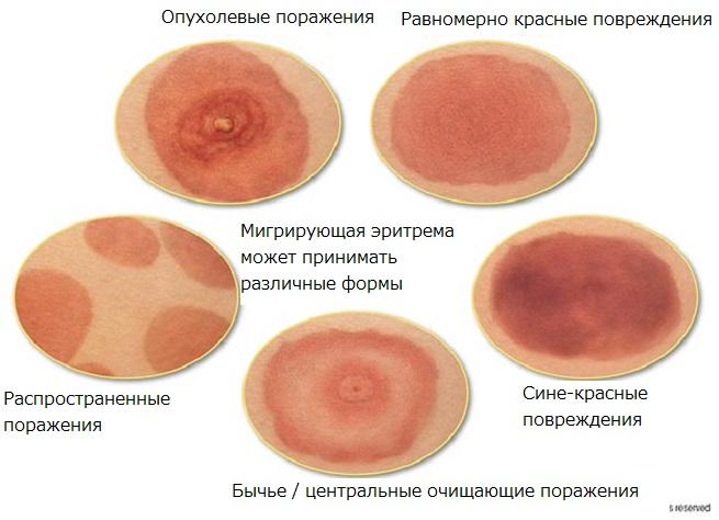 Виды эриремы