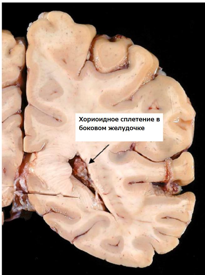 Что в голове происходит