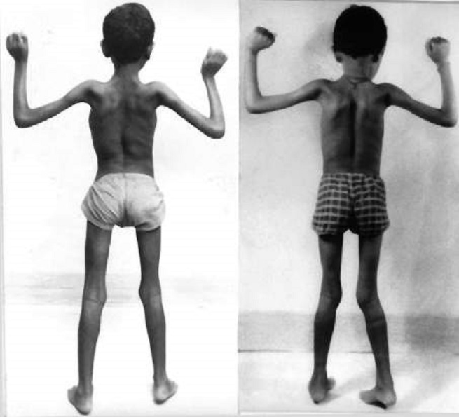 Дети при болезни Дюшенна