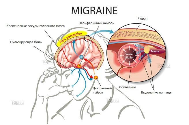 Как формируется мигрень