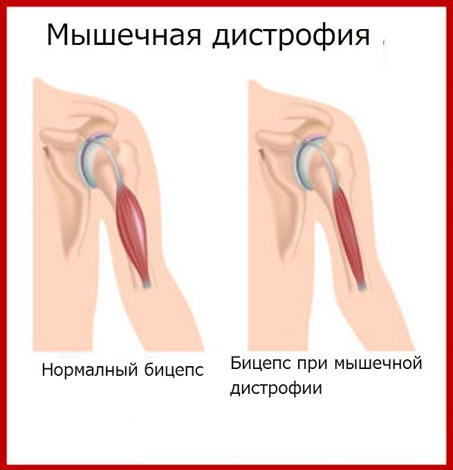 Мышцы при болезни