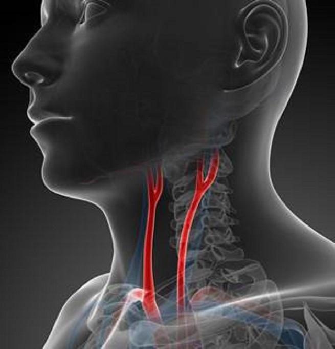 Артерии, питающие мозг