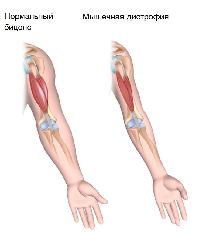 сравнение мышц