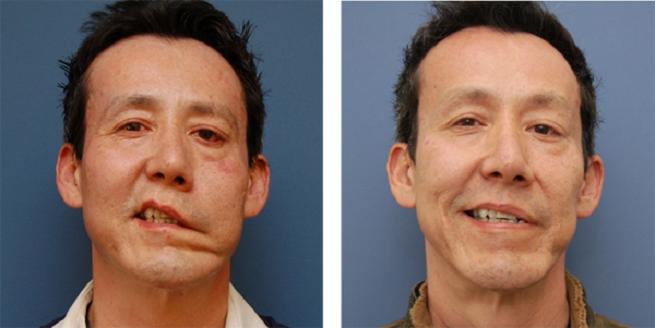 Нарушения лицевого нерва