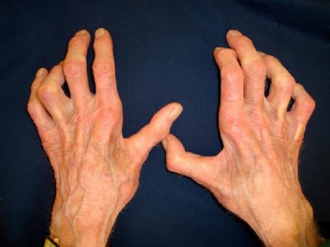 Перекошенные пальцы