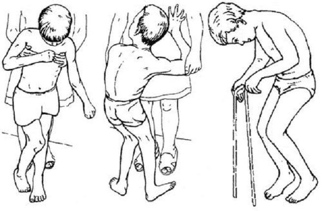 Разгибание колен