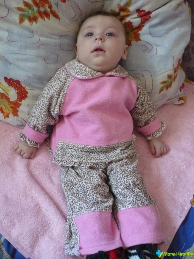 Малыш с недугом