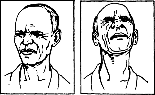 Мужчина страдает от гипертонуса