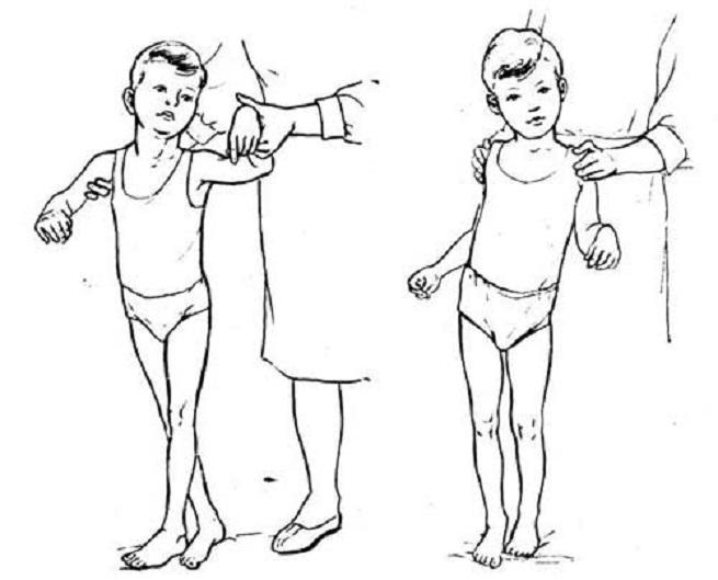 Перенос веса тела