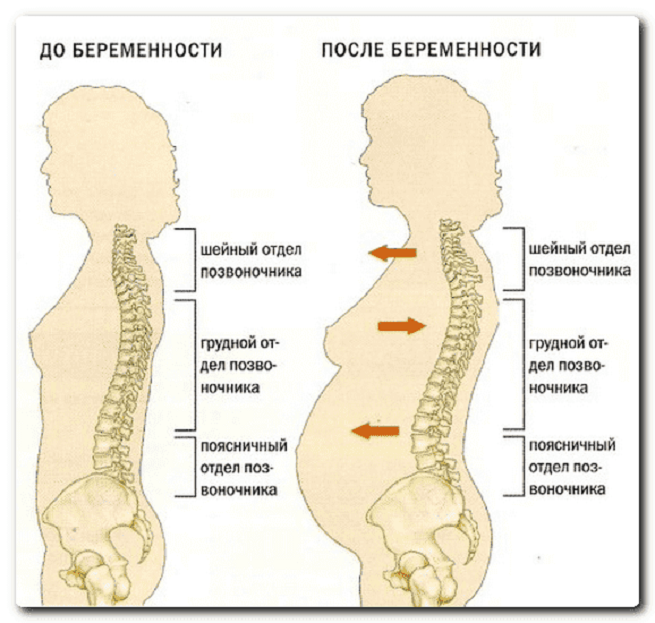 Боли в спине имеют причину