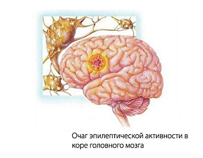 Очаг эпилептической активности