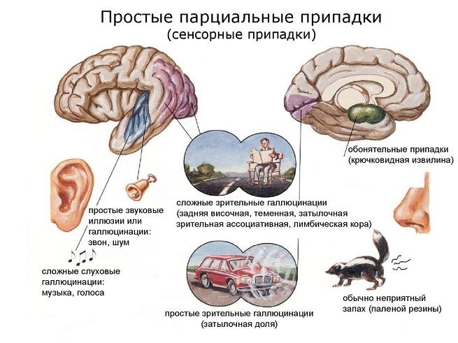 Описание сенсорных припадков
