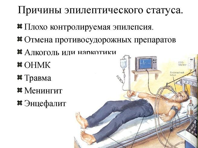 Признаки эпилептического статуса
