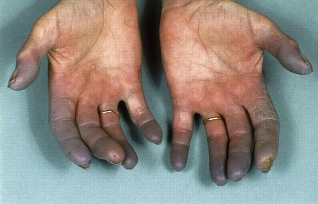 Почернение пальцев