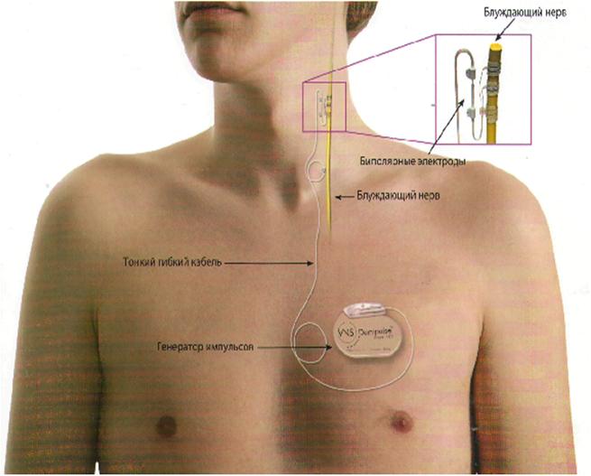 Стимуляция нерва