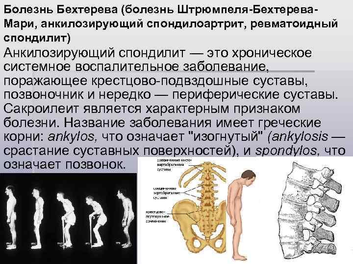 описание болезни Штрюмпеля