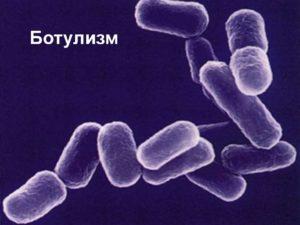 инфекция ботулизм